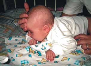 мышечная гипотония у новорожденных